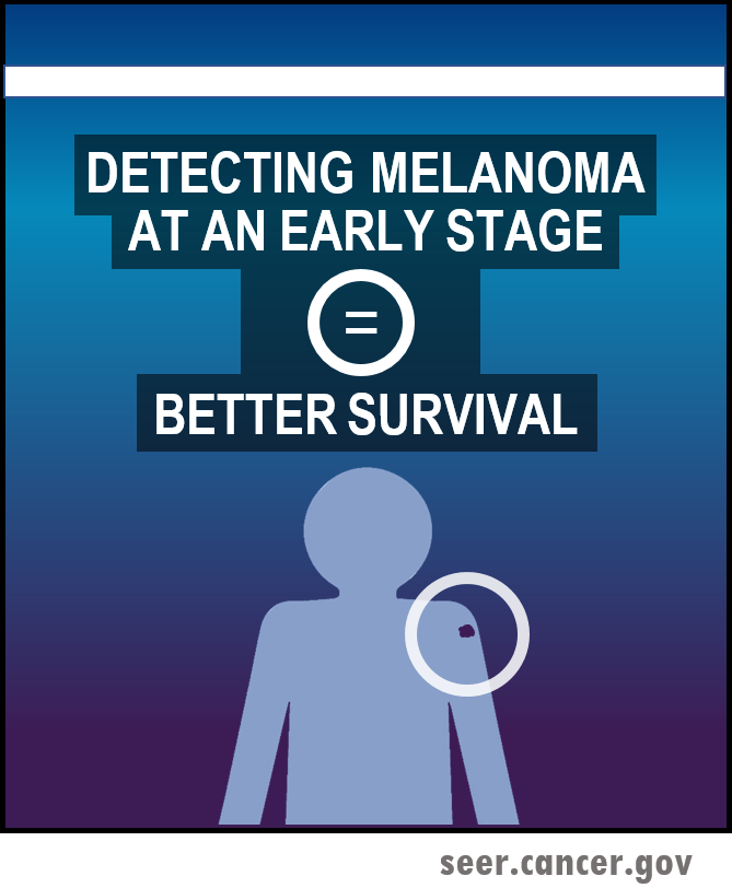 detecting melanoma in earlier stage leads to better survival