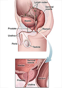 Anatomy diagram shows the prostate, urethra, penis, testicle, bladder, lymph nodes, seminal vesicle, and rectum are labeled. An inset provides a close-up view of the prostate, urethra, bladder, seminal vesicles, and rectum.